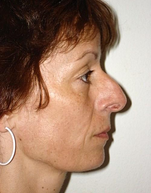 HNO Praxisklinik à Wengen für Ohren-, Nasen- und